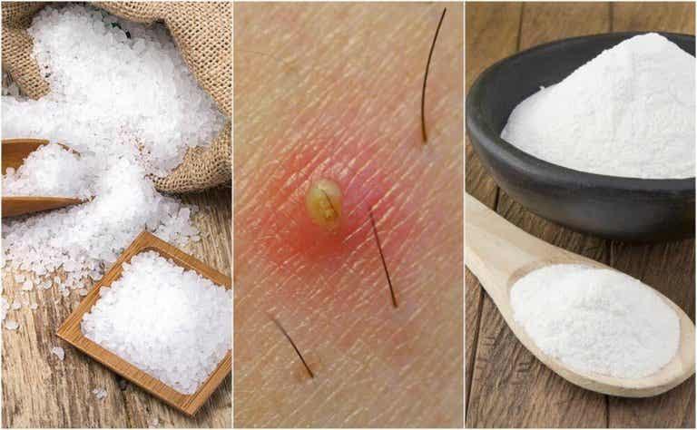 5 naturlige løsninger for inngrodde hår