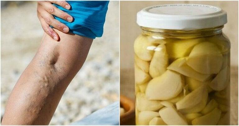 Hjemmeremedie med hvitløk og appelsin for å behandle åreknuter