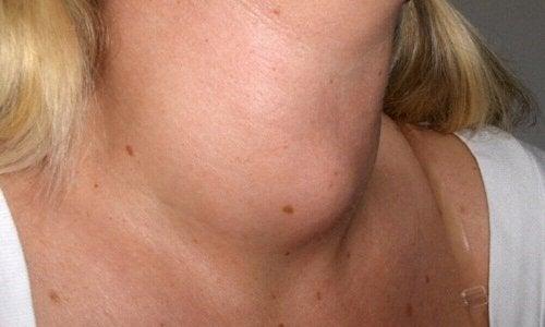 Tegn på strupekreft: hevelse i halsen