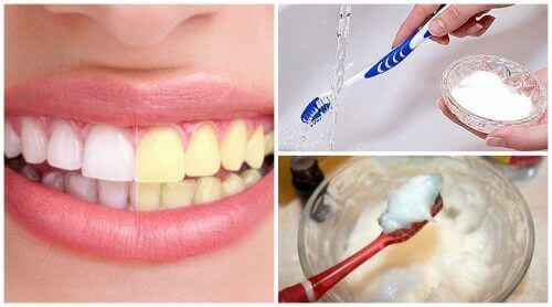 Bleke tennene naturlig