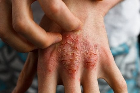 Behandle psoriasis med sarsaparilla
