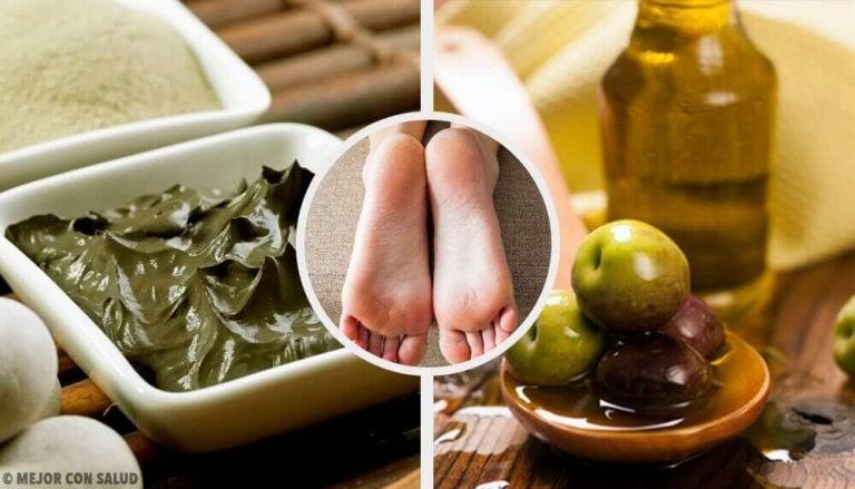 Mykgjør tørre hæler med disse naturlige remediene