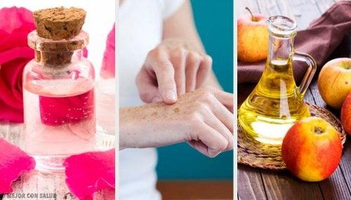 8 naturlige tips for å bleke solflekker på hendene