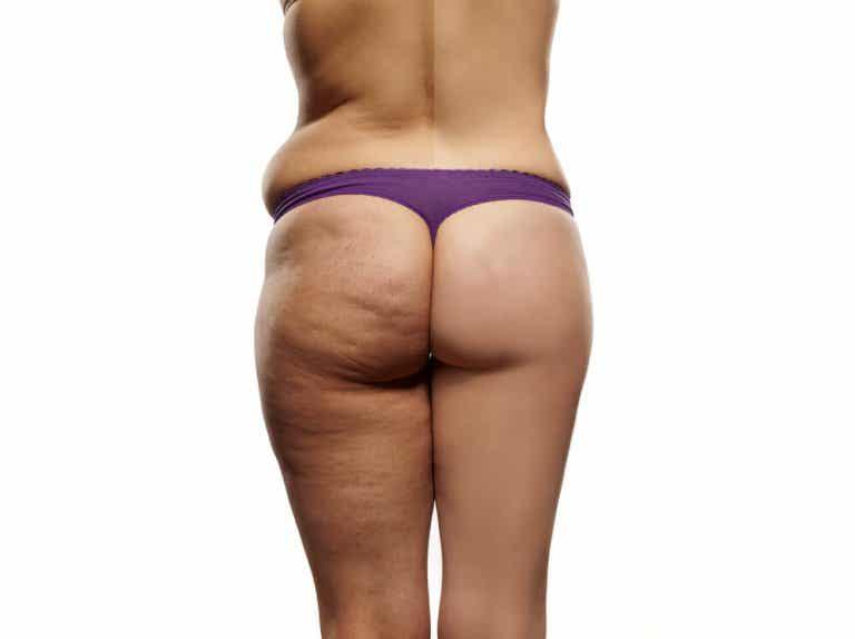 Dietten som kan hjelpe deg med å redusere cellulitter