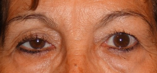 Fallende øyelokk