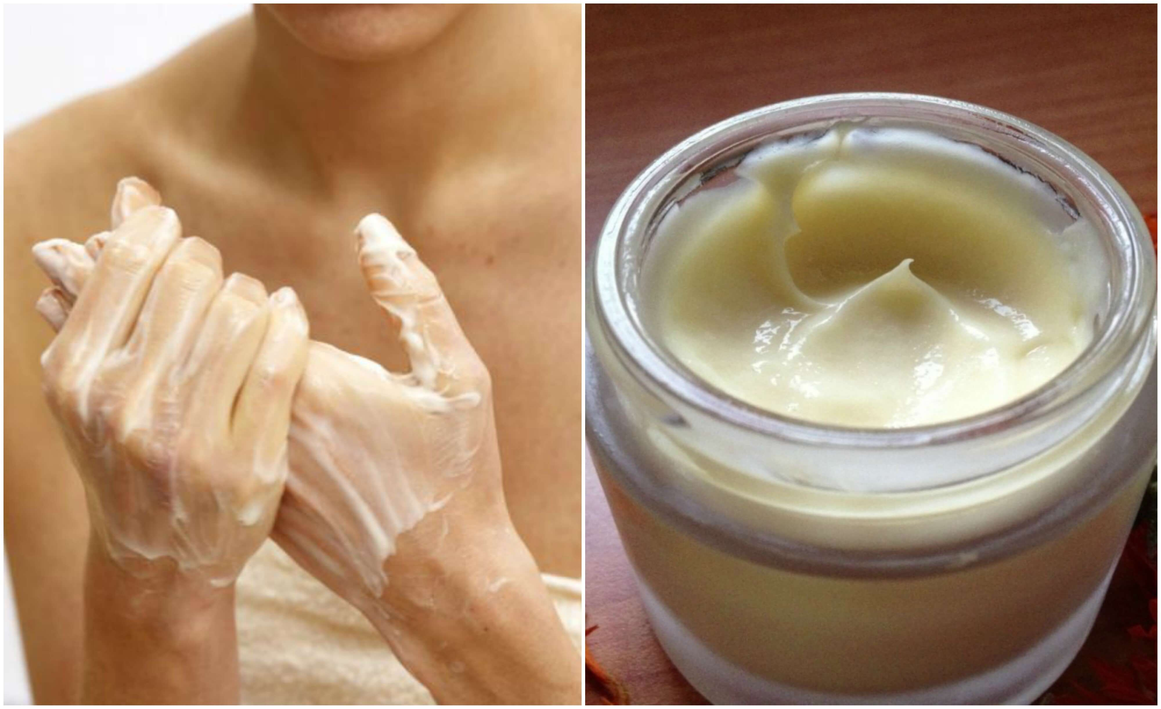 Smør huden med fuktighetskrem