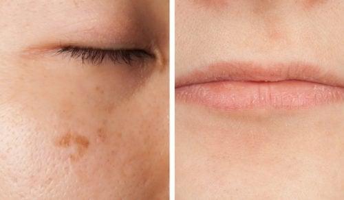 Fem måter ansiktet ditt kan advare deg om en vitaminmangel på