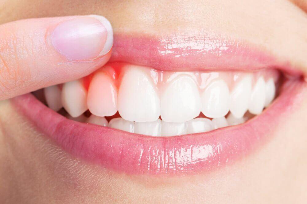 De 5 beste midlene for å lindre tannkjøttbetennelse
