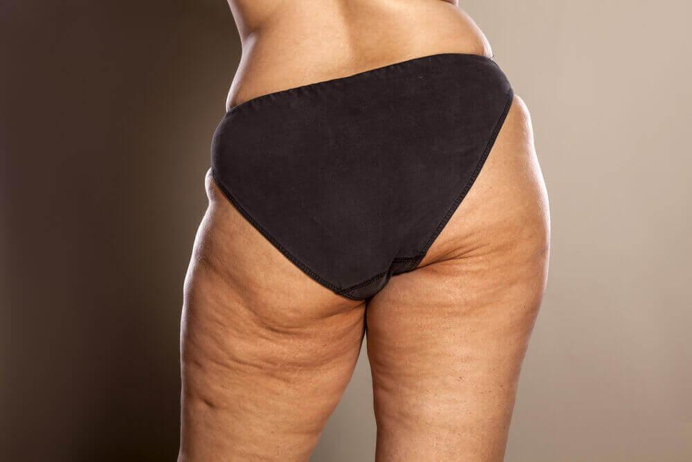 Motvirk cellulitter