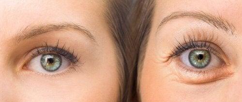 Motvirk hengende øyelokk med 5 naturlige ingredienser