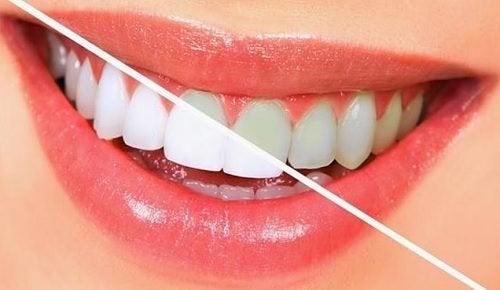 10 matvarer som bidrar til å bleke tennene dine naturlig