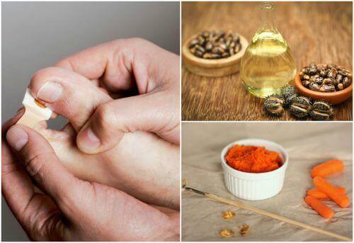 Bli kvitt hengenegler med 8 naturlige behandlinger