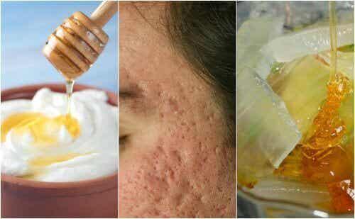 5 ansiktsmasker for å bli kvitt akne-arr i ansiktet