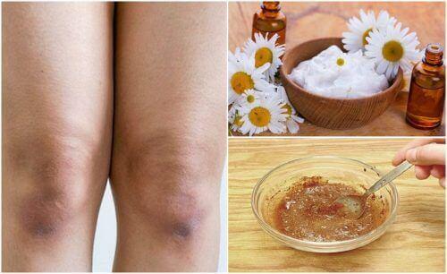 Lysne huden på knærne dine helt naturlig