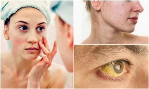 Syv tegn på mangel på næringsstoffer som du vil se på ansiktet ditt