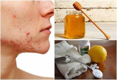 6 naturlige behandlinger mot cystisk akne