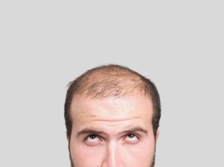 Tre naturlige remedier for å unngå skallethet