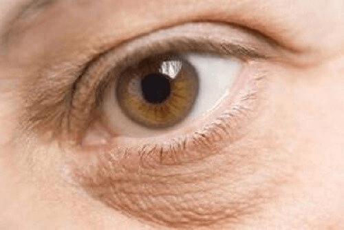 Hovne øyne