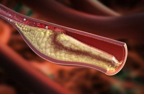 Sitrondietten reduserer kolesterol