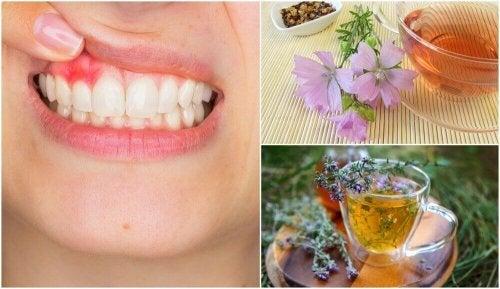 5 naturlige midler for å bekjempe gingivitt