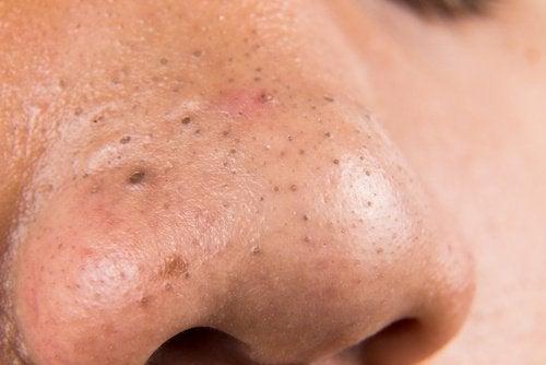 Kviser på nesen