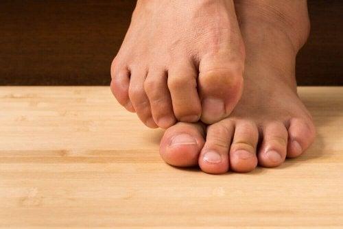 Lær hvordan du kan behandle hudsopp med naturlige ingredienser