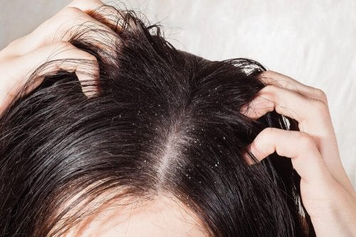 6 naturlige midler for sopp i hodebunnen