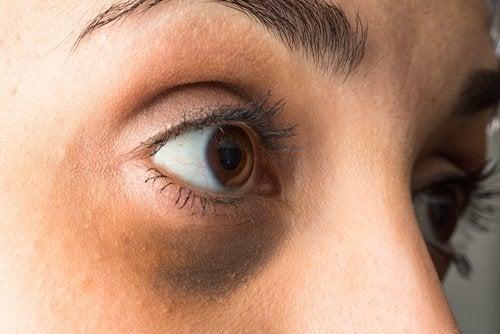 Hvordan lysne mørke ringer under øynene med eteriske oljer