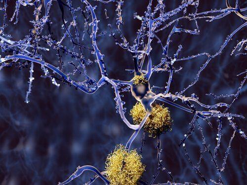 Typer demens som ikke er relatert til Alzheimers sykdom