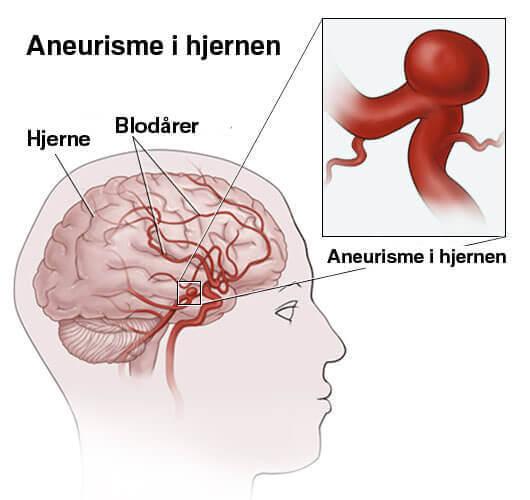 Hva er aneurisme i hjernen?