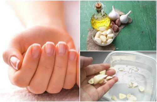 5 hjemmelagde behandlinger for raskere neglevekst