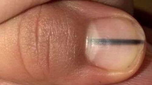 En svart strek på neglene dine kan signalisere kreft