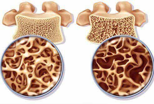 Kalsiumrike drikker for å forhindre beinskjørhet