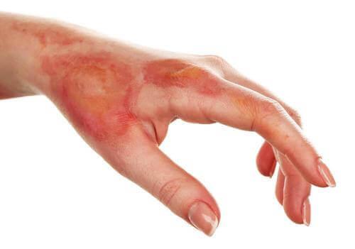 Lær å behandle brannsår med hjemmebehandlinger