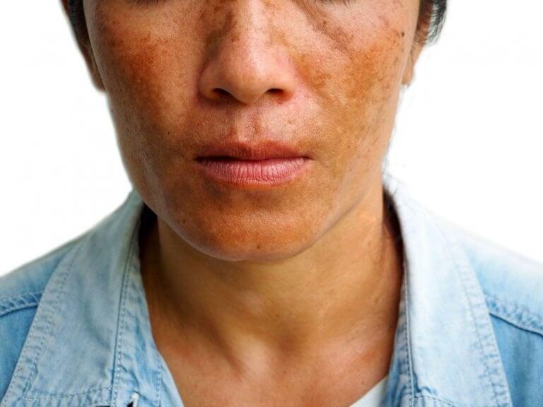 3 behandlinger for å redusere melasma-flekker