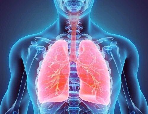Hva bronkiektasi er og alt du trenger å vite
