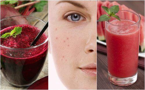 Bekjemp akne ved å legge 5 detox-smoothier til i kostholdet ditt