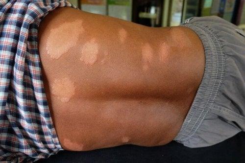 Bekjemp symptomene på Hansens sykdom naturlig