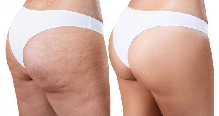 6 øvelser mot cellulitter du kan gjøre hjemme