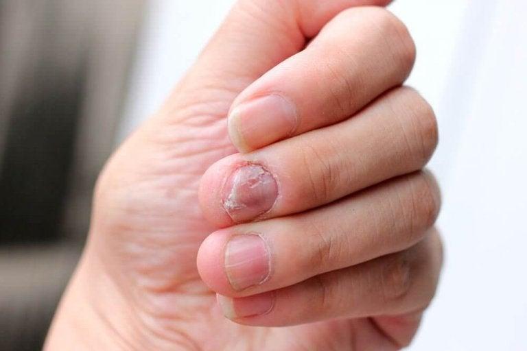 5 naturlige preparater mot psoriasis på neglene