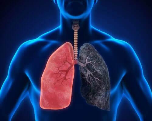 8 symptomer på lungebetennelse som du ikke bør ignorere