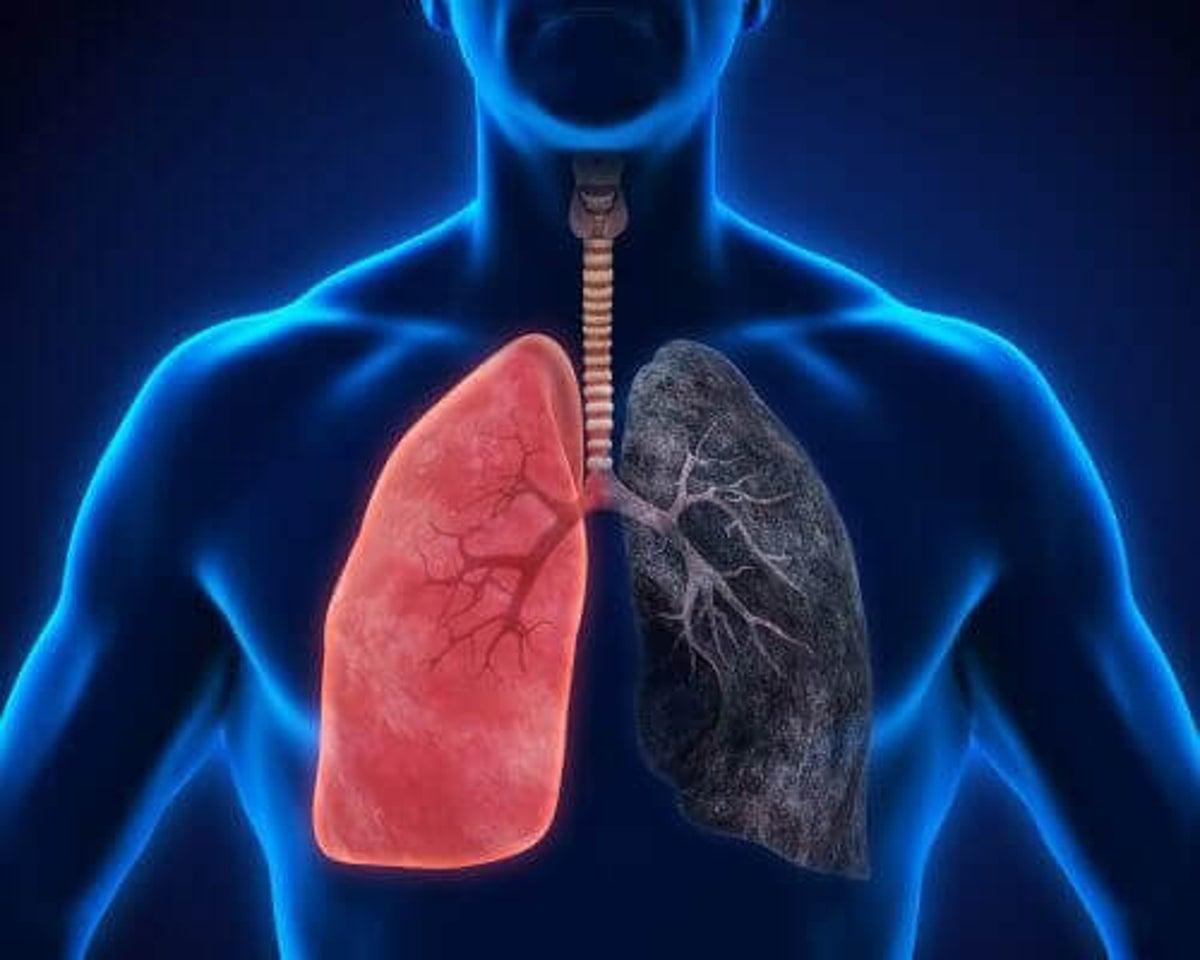Lungebetennelse virus
