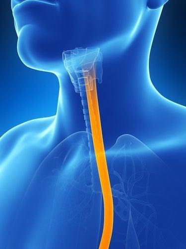 Bekjemp symptomer på øsofagitt med 5 naturlige remedier
