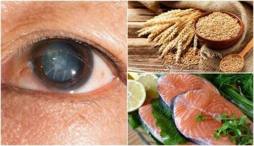 Reduser risikoen for grå stær ved å spise disse 7 matvarene