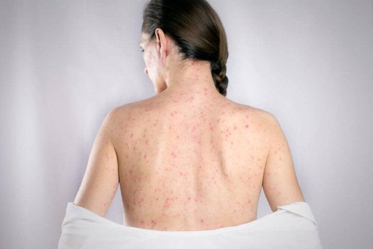 De 5 beste remediene for å kurere herpes på ryggen