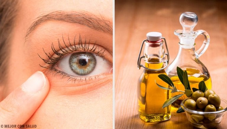 6 naturlige remedier mot øyebetennelse