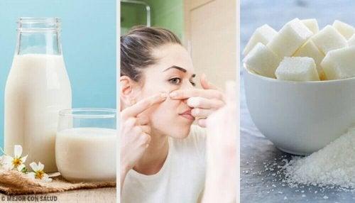 Eliminer urenheter i huden med disse fire maskene
