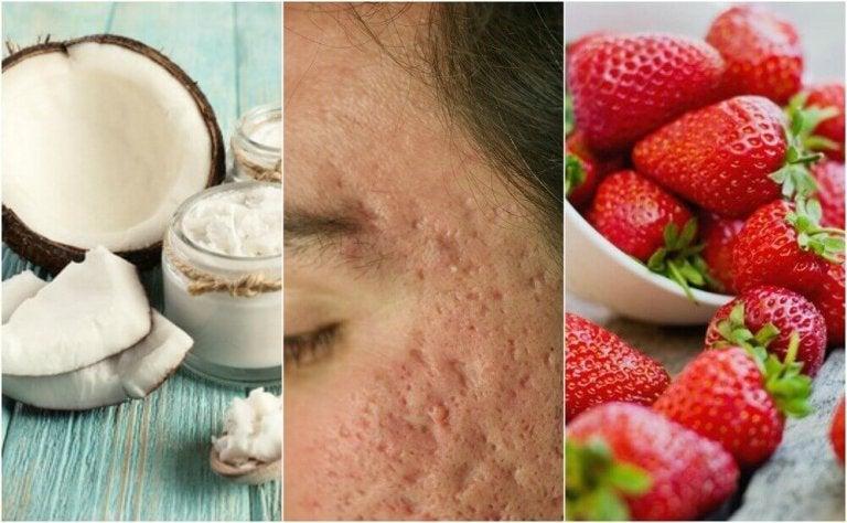 5 hjemmelagde behandlinger for å redusere akne-arr