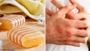 Hjemmelaget såpe for å bekjempe dermatitt