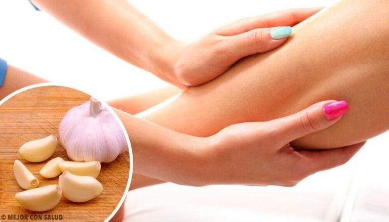 Naturlige behandlinger mot væskeansamling